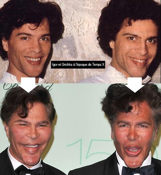 Avant / après : les frères Bogdanoff