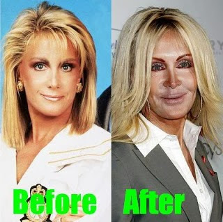 2Joan Van Ark before and after