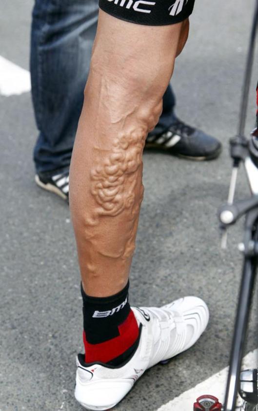 Georgie hincapie's legs after riding 15 editions of the Tour de France