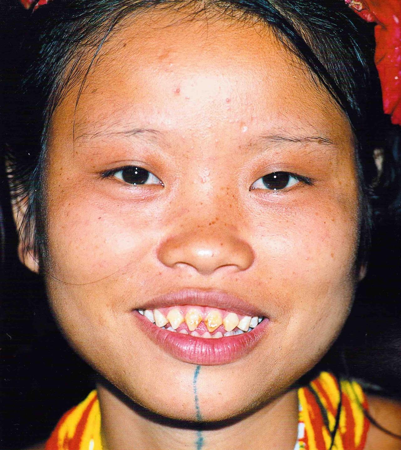 """Résultat de recherche d'images pour """"dents pointues japon"""""""