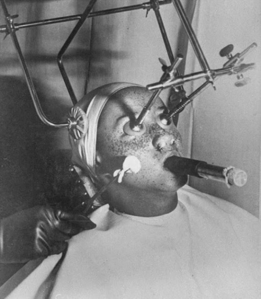 Unusual and Bizarre Beauty Devices in the 1930s and 1940s (3)